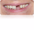 Teeth - Missing Front Tooth